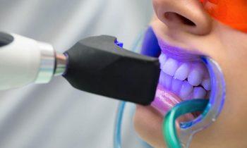 Diş Beyazlatma Yöntemleri, Diş Beyazlatma Doktor Fiyatları