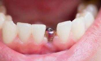 Diş İmplantı Nedir ve Nasıl Yapılır? Diş İmplantı Fiyatları